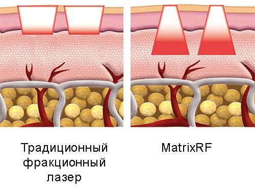 Сублятивное фракционное RF-омоложение
